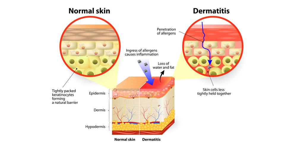 eczema5
