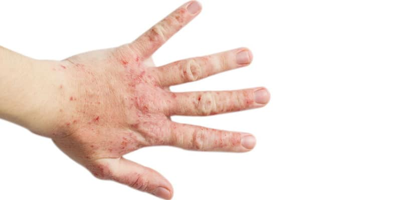 eczema3