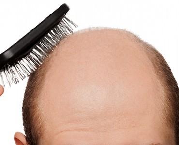 https://www.panel.illinoisderm.com/files/media/11/media__hair-loss-hair-problems-370x300_ea0d77a9c1.jpg