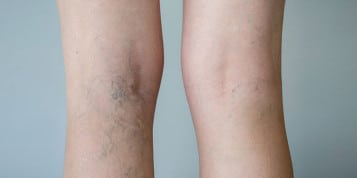 https://www.panel.illinoisderm.com/files/media/11/media__idivaricoseveins-357x178_4aa5743786.jpg