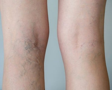 https://www.panel.illinoisderm.com/files/media/11/media__idivaricoseveins-370x300_a3bddff9c9.jpg