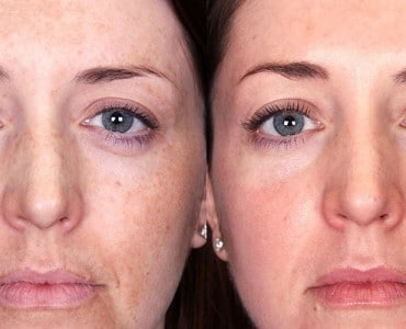 https://www.panel.illinoisderm.com/files/media/11/media__malasma-skin-discoloration-370x300_9e461a7272.jpg