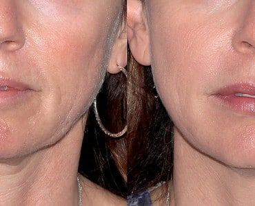 https://www.panel.illinoisderm.com/files/media/11/media__radiesse-370x300_8ddd9557e8.jpg