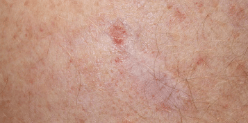 https://www.panel.illinoisderm.com/files/media/11/media__skincancer-357x178_c73e183438.png