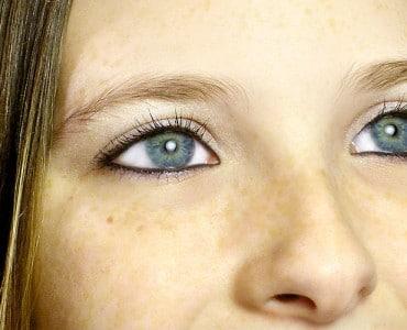 https://www.panel.illinoisderm.com/files/media/11/media__treatment-facial-discoloration-370x300_8c0fed19b5.jpg