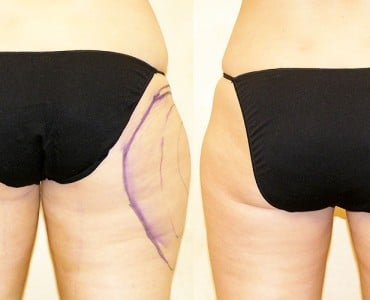 https://www.panel.illinoisderm.com/files/media/11/media__tumescent-liposuction-370x300_7dd0a2a304.jpg